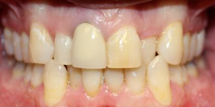 Before-Patient02